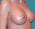 Breast enlargement with Mentor 315... - بعد