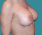 Breast enlargement with Mentor 350... - بعد