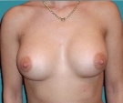 Breast enlargement with Matrix 320... - بعد