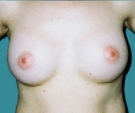Breast enlargement with Matrix 280... - بعد