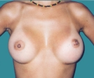 Breast enlargement with Mentor 330... - بعد