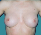 Breast enlargement with Matrix 295... - بعد
