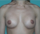 23 years old patient, implants... - بعد 4 أشهر