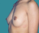 Breast enlargement with Mentor 330... - قبل
