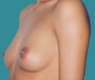 Breast enlargement with Matrix 320... - قبل