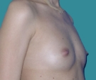 Breast enlargement with Mentor 315... - قبل