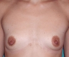 Breast enlargement with Matrix 335... - قبل
