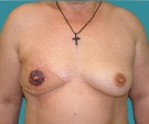 Right breast reconstruction with... - بعد
