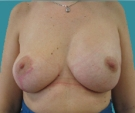 Left breast reconstruction with... - بعد