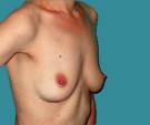 Bilateral breast reconstruction... - قبل