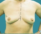 Right breast reconstruction with... - قبل