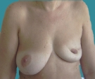 Left breast reconstruction with... - قبل