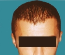 Hair transplant, result after 2... - بعد 3 أشهر after the second transplant