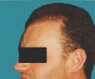 Hair transplant, result after one... - بعد 3 أشهر