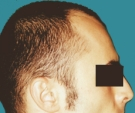 Hair transplant, result after 2... - قبل