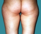 30 years old patient, liposuction... - قبل