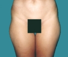 29 years old patient, liposuction... - قبل