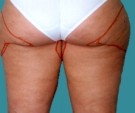 31 years old patient, liposuction... - قبل