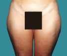 36 years old patient, liposuction... - قبل