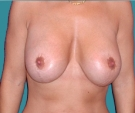 Breast lift with Mentor 315... - بعد