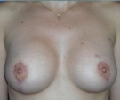 Breast lift with Mentor 280... - بعد 3 أشهر