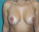 Breast lift with Mentor 270... - بعد 6 أشهر