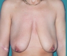 Breast lift with Mentor 315... - قبل