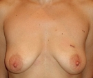Breast lift with Mentor 280... - قبل