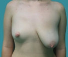 Poland syndrome, right breast 300... - قبل