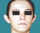 17 years old patient - otoplasty - قبل