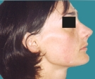 23 years old patient, rhinoplasty - بعد 3 أشهر