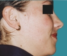 25 years old patient, rhinoplasty - بعد 6 أشهر