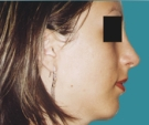 22 years old patient, rhinoplasty - بعد 6 أشهر