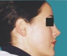 24 years old patient, rhinoplasty - بعد 3 أشهر