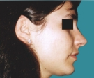 27 years old patient, rhinoplasty - بعد 3 أشهر