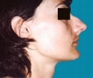 23 years old patient, rhinoplasty - قبل