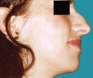25 years old patient, rhinoplasty - قبل