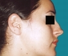 24 years old patient, rhinoplasty - قبل
