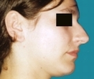 27 years old patient, rhinoplasty - قبل